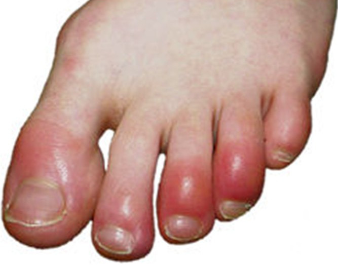 peeling fingers and toes in adults