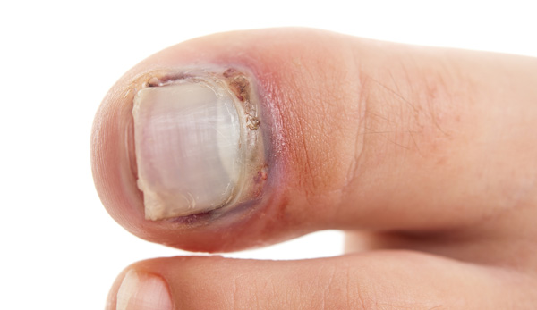 Thick Toenails: Trimming, Treatment & Causes